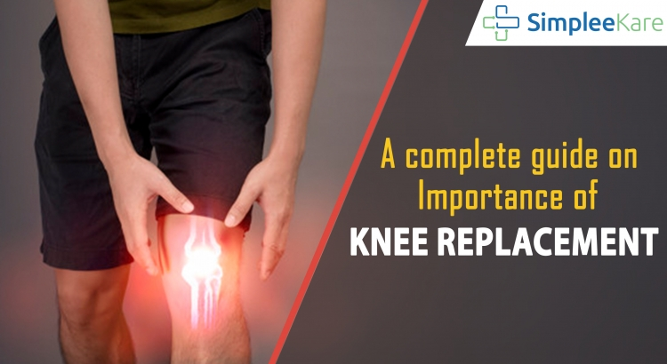 A complete guide on implants in knee replacement