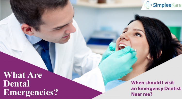 When Should I Visit a Dentist?