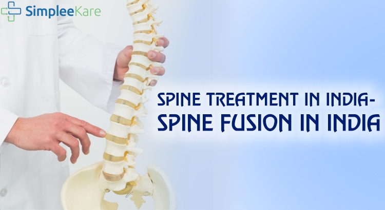 SPINE TREATMENT IN INDIA – SPINAL FUSION IN INDIA